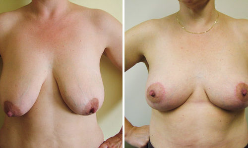 Breast Uplift - Front View
