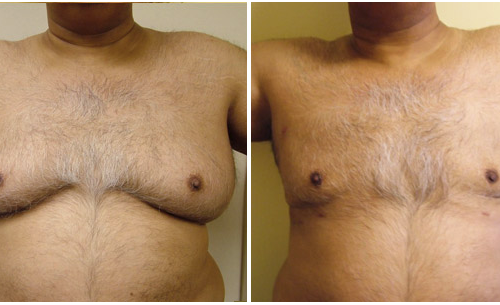 Gynaecomastia treated with Liposuction